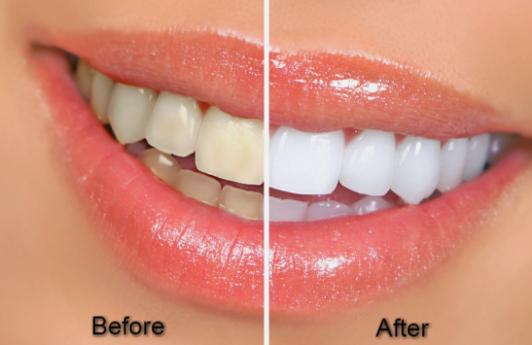 Inilah 7 Cara Ampuh Memutihkan Gigi Secara Alami No 6 Jarang Di