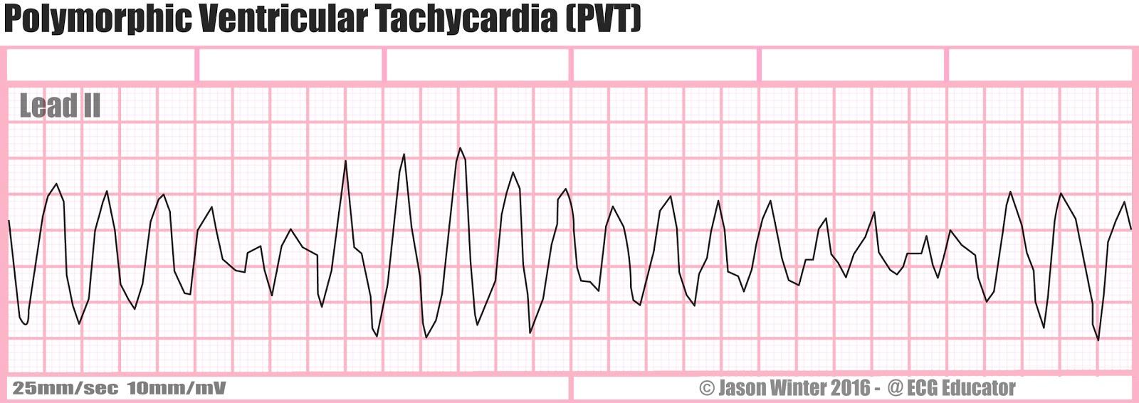 ECG Educator Blog : Polymorphic Ventricular Tachycardia (PVT) Ventricular Tachycardia Rhythm Strip
