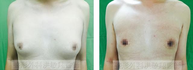 洪敏翔醫師男性女乳症手術案例