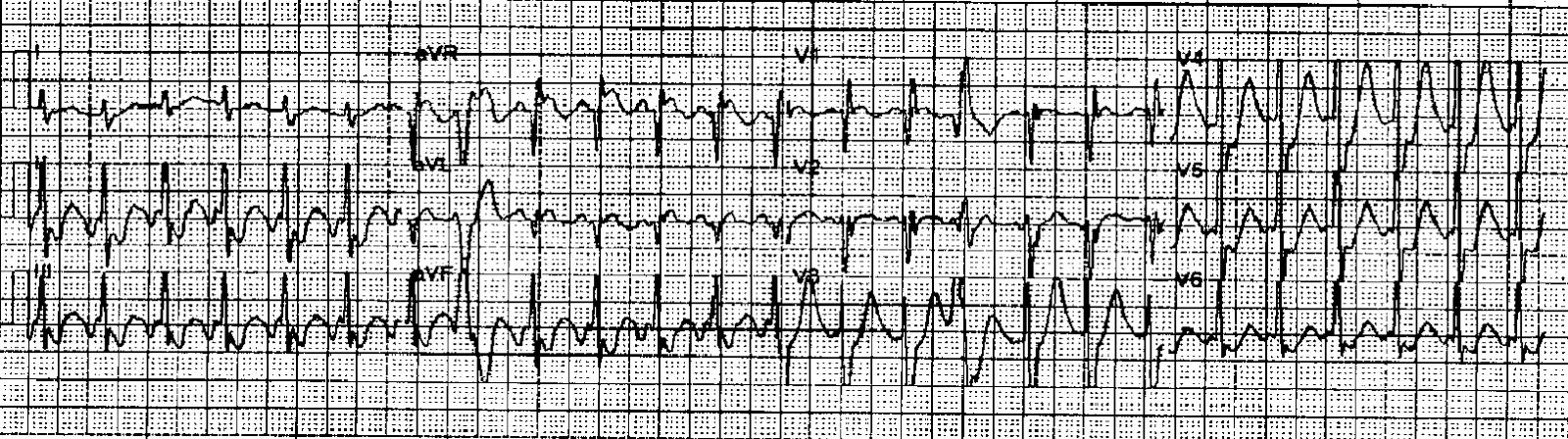 Dr  Smith's ECG Blog: A fast narrow complex rhythm