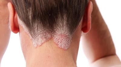 Gambar Kenapa Pada Kulit Timbul Seperti Sisik atau Kerak , Diagnosis Psoriasis
