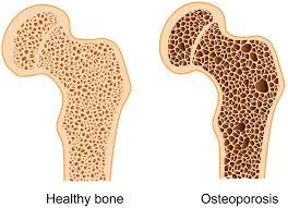 Obat osteoporosis herbal