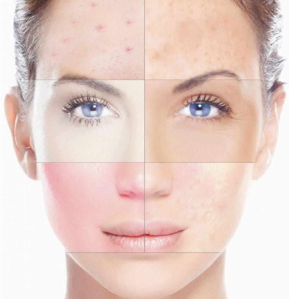 piel sensible y reactiva tratamiento