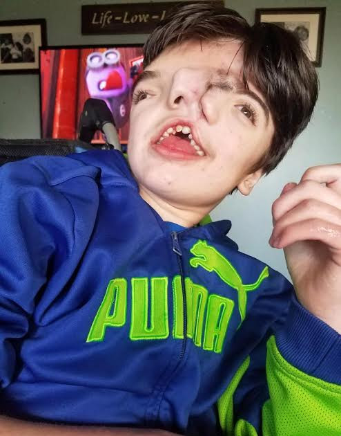 Boy born two faces defies odds to celebrate his 13th birthday