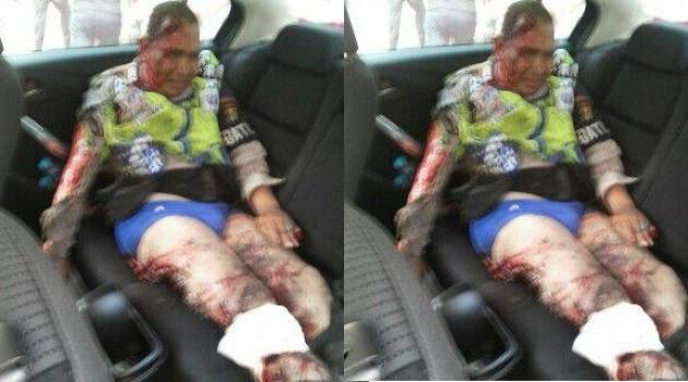 Polisi Korban Peledakan Bom di Sarinah