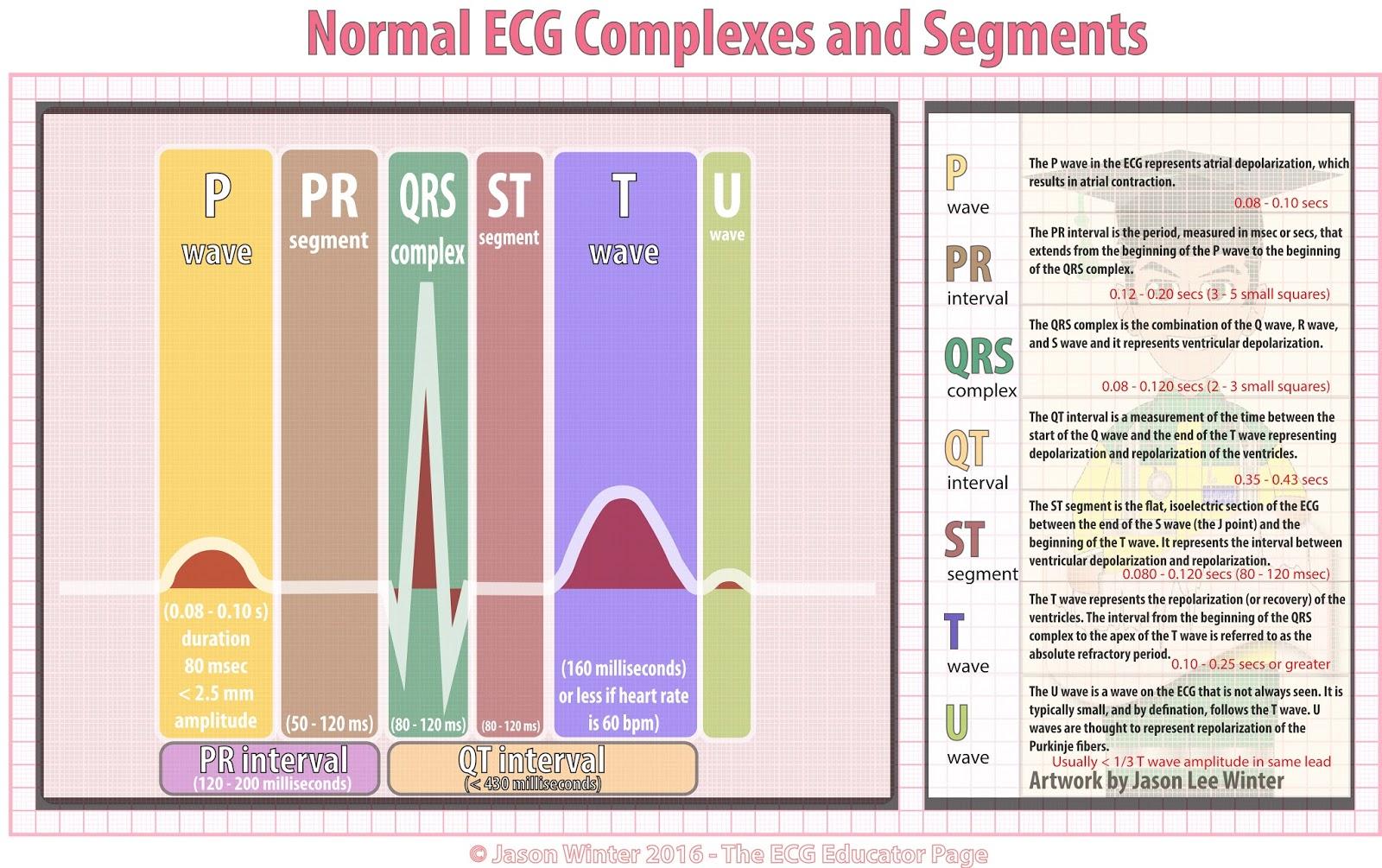 Ekg Interval Worksheet