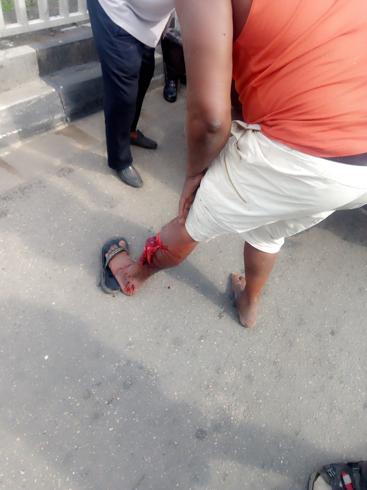 Because Of Lawlessness And Recklessness, Bike Rider Involved In Ghastly Accident At Allen Avenue Ikeja Lagos