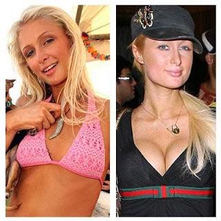 Paris Nicky Hilton Plastic Surgery