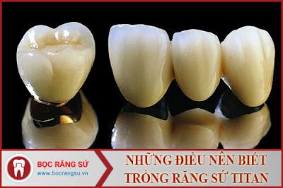 những điều nên biết về trồng răng sứ titan -1