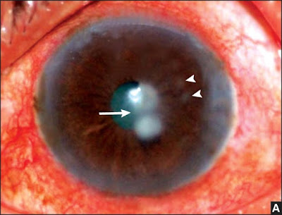 Fig. 2.6A: 10 days old fungal corneal ulcer showing two central (→) and two peripheral satellite (½) lesions
