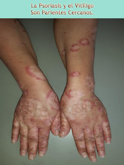 El Vitiligo y la Psoriasis son parientes cercanos.