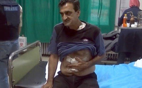 """استشهاد طفلة وإصابة 5 أشخاص جراء اعتداء إرهابيي """"النصرة"""" بالقذائف على أحياء سكنية في درعا"""