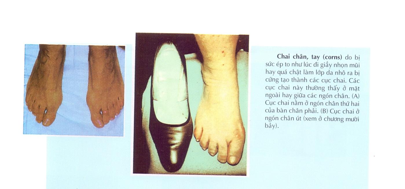 Một số bệnh về xương khớp phổ biến qua hình ảnh đời thực