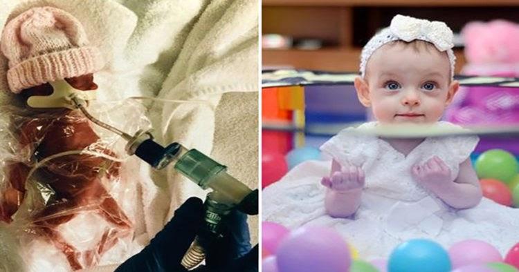 Η μικροσκοπική αγωνίστρια που γεννήθηκε μισό κιλό και χθες έσβησε το τρίτο της κεράκι