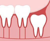 Symptômes des dents de sagesse qui entrent