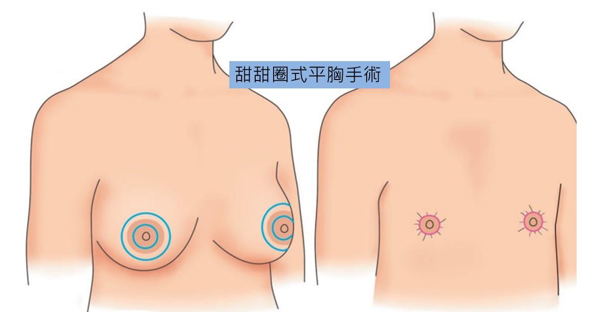 甜甜圈平胸手術是切除部份的皮膚,像甜甜圈的形狀,適合B、C罩杯,胸部不垂的平胸手術