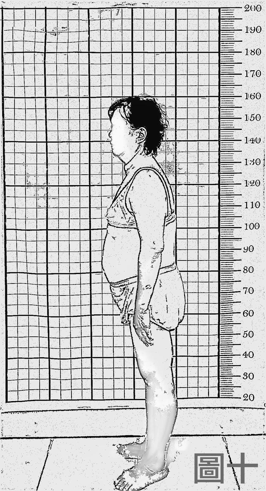 脊椎側彎, 脊椎側彎矯正, 脊椎側彎治療, 骨盆傾斜, 脊椎側彎 瑜珈, 脊椎側彎復健