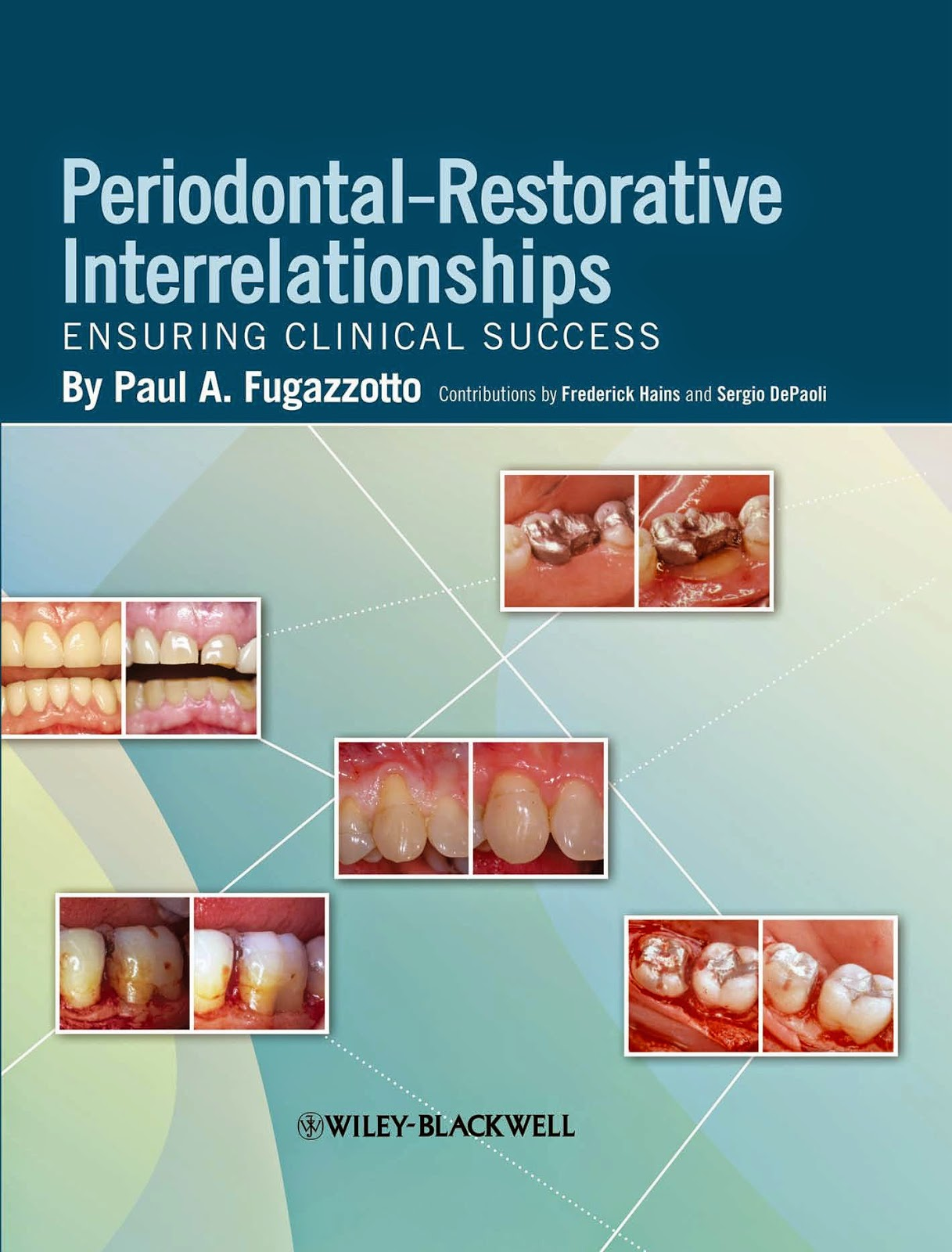Periodontal-Restorative Interrelationships: Ensuring Clinical Success -Paul A. Fugazzotto - 1st.ed© 2011