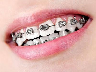 Niềng răng khắc phục răng cửa thưa mọc lệch
