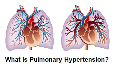 Information on pulmonary hypertension (PH) according to the study