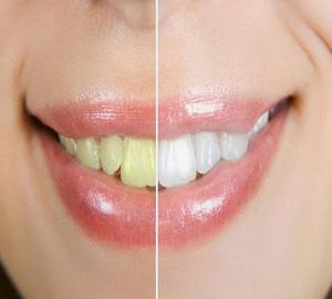 gigi kuning, gigi kusam, cara alami putihkan gigi, gigi putih dengan baking soda dan garam, lemon dan minyak kelapa