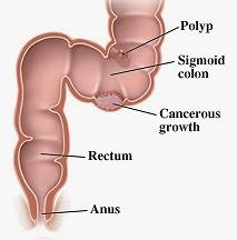 rectum, anus, sembelit, berpantang, sembeli semasa pantang, punca sembelit, ibu hamil sembelit, ibu bersalin sembelit, sistem pencernaan,