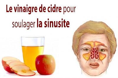 Guérir l'infection des sinus avec du vinaigre de cidre