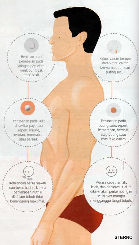 tanda kanker payudara pada pria