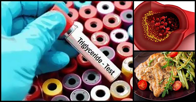 Helpful Tips To Follow That Can Help Lower Down Triglyceride Levels