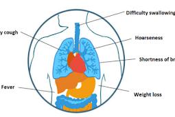 Asbestos Cause Pleural Mesothelioma
