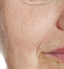 Beauty tips - how to remove open pores in aging skin