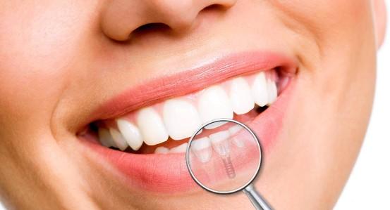 Impianti dentali e depressione: un binomio da non sottovalutare