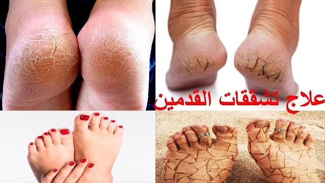 علاج جفاف وتقشر وتشقق الكعب والقدمين