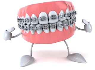 orthèses dentaires pour adultes