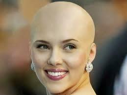 Keturunan penyebab rambut rontok