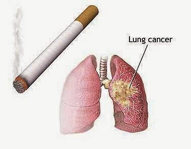 Mesothelioma and Smoking