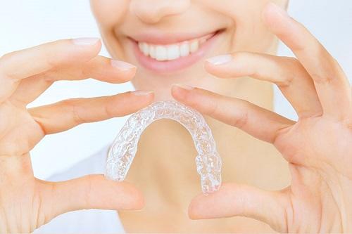 Kết quả hình ảnh cho trong dịch vụ niềng răng là như thế nào