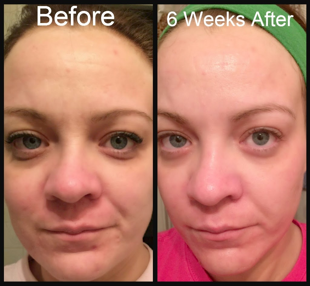 Rodan-and-Fields-Redefine-Regimen-and-Acute-Care-Review, anti-wrinkle