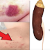 Warning Symptoms That You Have Kidney Disease but You Always Ignore Them