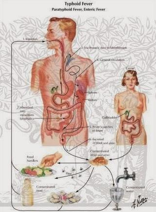obat untuk sakit tipes yang paling manjur