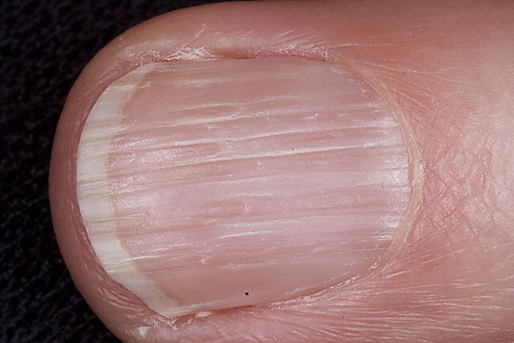 Splitting nails vitamin deficiency - Awesome Nail