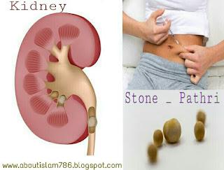 Gurde ki pathri kidney stone pain