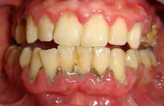 علاج التهاب الأسنان واللثة