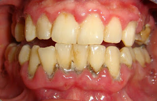 Photo of علاج التهاب الأسنان واللثة
