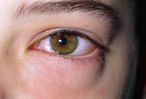 RECIPES HEALTH BEAUTY: Itchy Eyes : Symptoms, Causes
