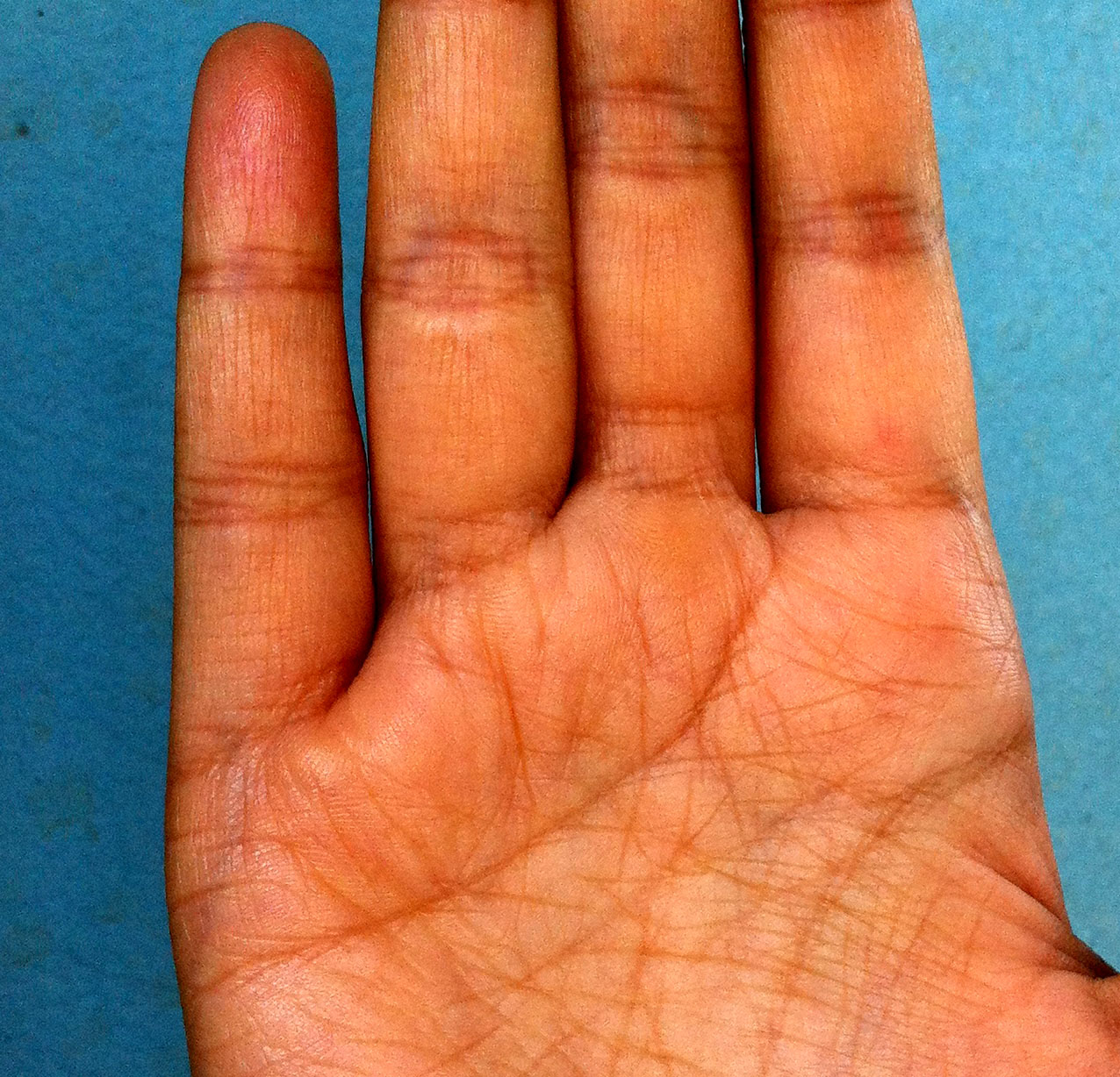 Marriage Line Dropping Down To Heart Line Palmistry | INDIAN PALM