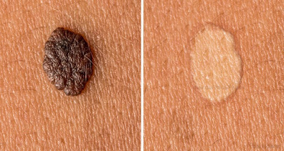 Best Home Remedies For Skin Tags
