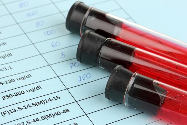 Veja como interpretar o resultado de um teste de HIV
