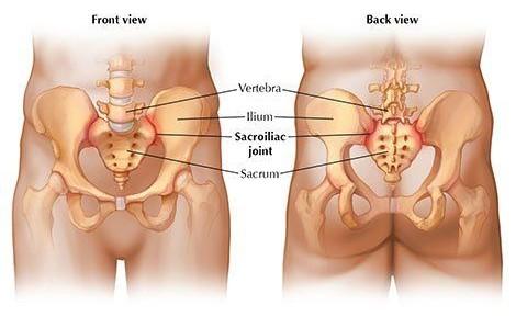 sacroiliac joint dysfunction exercises pdf