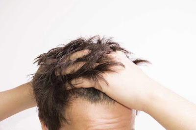 Hair Transplant Information